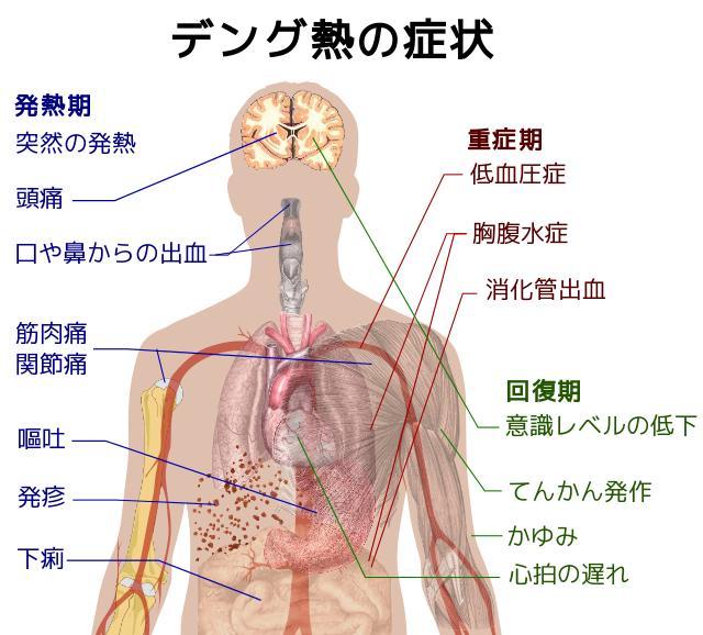 Dengue_fever_001.jpg