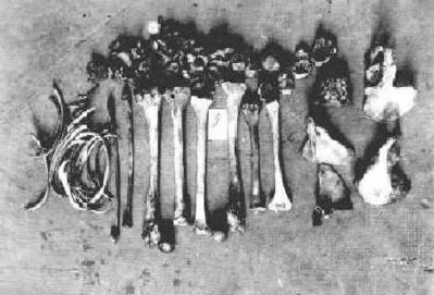 犠牲者の骨