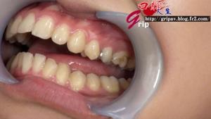 口腔咀嚼診察「粘膜剥き出し!開口器美女」/高沢沙耶