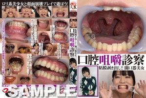 口腔咀嚼診察 粘膜剥き出し開口器美女/高沢沙耶