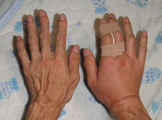 右手の腫脹