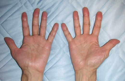 手の関節炎