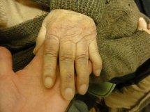 大変! おばあちゃんの指が・・・・・・・・