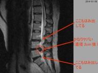 MRI-2014-01-06