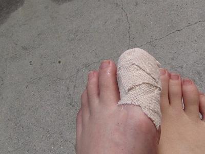 負傷した足
