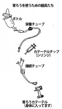 胃ろうの器具たち