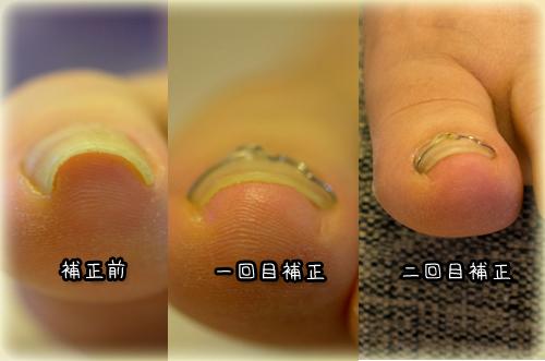*3-巻き爪左正面