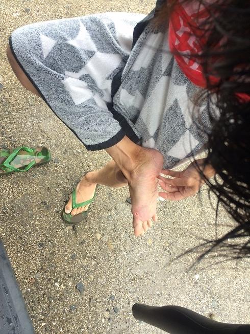 foot (1)