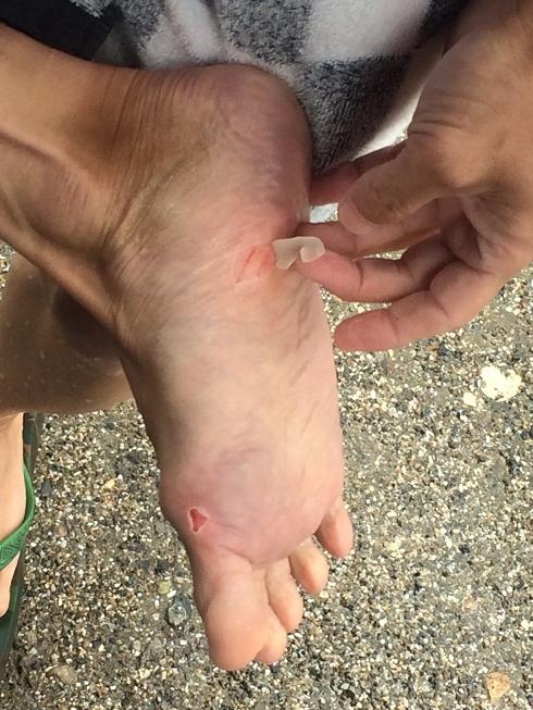 foot (2)