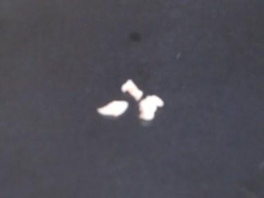 3個目の乳歯、3分割