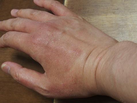 ママの手、腫れてましゅ