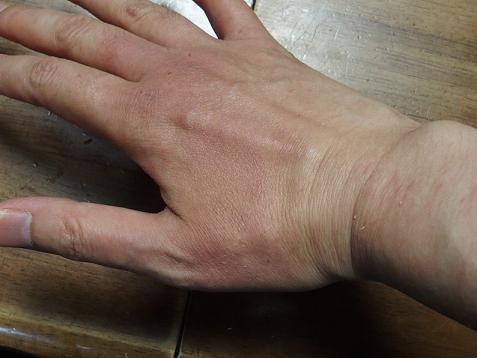 もう一度、ママの手が腫れてましゅ