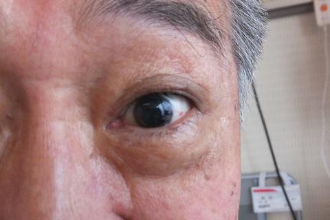 瞳孔全開DSCF2666 のコピー