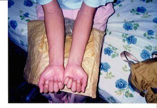 デング熱の発疹