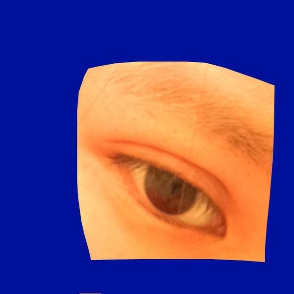 整形後の目