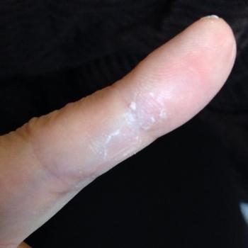 の が 指先 むける 皮